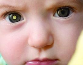Phát hiện dấu hiệu ung thư mắt từ những bức hình chụp hàng ngày của trẻ