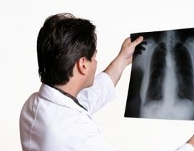 Bệnh viện đầu tiên không in phim chiếu chụp của bệnh nhân