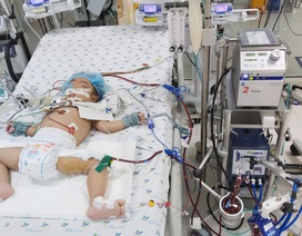 Bé 3 tuổi tê liệt chức năng phổi vì suy hô hấp được cứu sống kỳ diệu