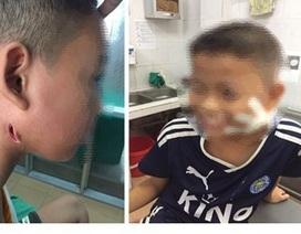 Bệnh nhân nhập viện vì ngỡ viêm hạch hoá nhiễm khuẩn huyết vì vi khuẩn Whitmore
