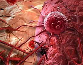 Duy trì 10 thói quen mỗi ngày, ung thư khó tới gần bạn