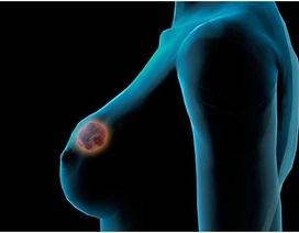Phụ nữ Việt mắc ung thư vú sớm, từ 30 - 34 tuổi đã bị
