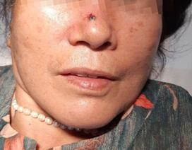 Tưởng nốt ruồi bình thường hóa ung thư da