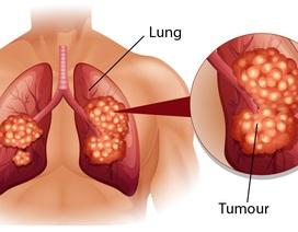 Mắc ung thư phổi có mổ được không?