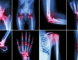 Điều trị đau khớp bằng phương pháp thông thường có thể có hại hơn chúng ta nghĩ