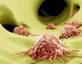 Làm sao để vượt qua được bệnh ung thư đã di căn?