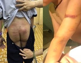 Vụ bé trai nghi bị bố, mẹ kế bạo hành: Mẹ ruột phản ứng kết quả giám định