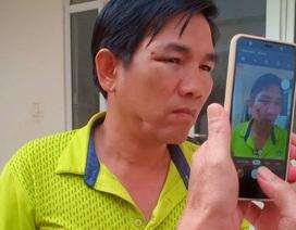 Không khởi tố Chánh văn phòng Huyện ủy đánh lái xe nhập viện