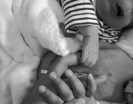 Em bé sinh ra không có mặt, bác sĩ bị đình chỉ 6 tháng