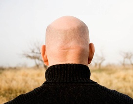 Ô nhiễm không khí… gây hói đầu