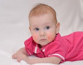 Cha mẹ nên biết: Các yếu tố gây dị ứng thực phẩm ở trẻ sơ sinh