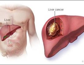 7 điều cần làm nếu muốn tránh ung thư gan