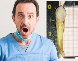 Lập kỷ lục thế giới nhờ chiếc răng dị thường