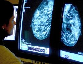 Điều trị nội tiết ung thư vú