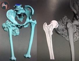 Lần đầu tiên ở Việt Nam: Xương đùi nhân tạo in 3D được ghép cho bệnh nhân