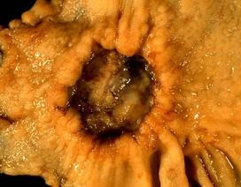 Chiến thuật sinh tồn độc đáo của loài vi khuẩn gây ung thư dạ dày 50% người Việt mắc