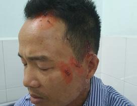 Công an điều tra vụ người dân tố bị côn đồ đánh trọng thương