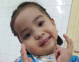Phẫu thuật cứu bé gái khỏi khối u lấp kín miệng