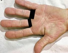 Dấu hiệu lạ ở bàn tay cảnh báo bệnh ung thư phổi