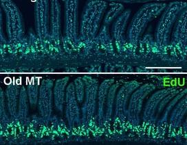 Vi khuẩn trong ruột có thể làm thay đổi quá trình lão hóa