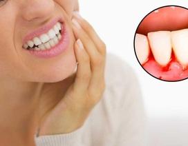 Dung dịch nha khoa Nutridentiz - Giải pháp vàng cho người bị chảy máu chân răng