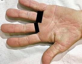 Phát hiện ung thư phổi từ dấu hiệu lạ ở lòng bàn tay