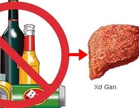 Phát triển thuốc điều trị xơ gan do rượu
