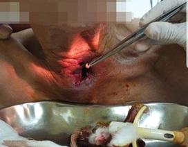 Hơn 30 con giòi làm tổ trong họng cụ ông ở Quảng Ninh