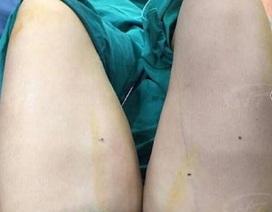 Nam bệnh nhân áp xe nặng sau hút mỡ vùng đùi
