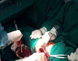 Cứu sống bệnh nhân Cơtu bị cây đâm thủng đùi