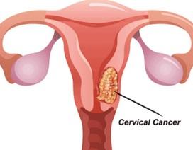 Những điều chị em cần tránh để ung thư cổ tử cung không ghé thăm