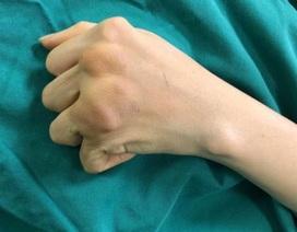 Người phụ nữ 38 tuổi bất lực 10 năm không thể tự chải tóc vì khớp xương biến dạng