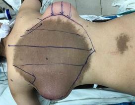 """Mảng """"da trâu"""" khổng lồ ở lưng được phẫu thuật điều trị thành công"""