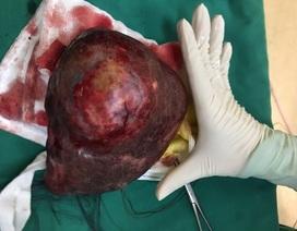 Nuôi lớn lá gan lành để cắt khối u ác tính to như quả bưởi
