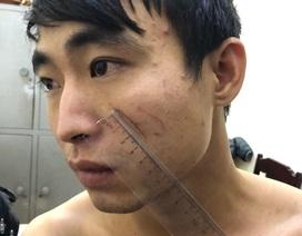 Nghi phạm giết bạn gái trong nhà nghỉ ở Sầm Sơn khai do dùng ma túy đá