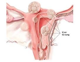 Nga Phụ Khang giúp cải thiện tình trạng u xơ tử cung như thế nào?
