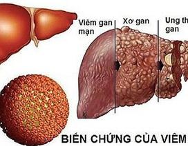 Ung thư gan: Khó chữa lành, có thể phòng tránh
