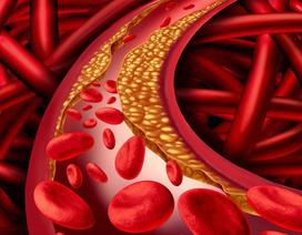 Cải thiện triệu chứng rối loạn lipid máu hiệu quả, an toàn nhờ Lipidcleanz