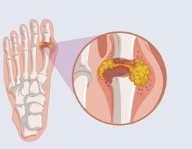Sản phẩm Hoàng Thống Phong – Giải pháp hữu hiệu cho người bị gút ở ngón chân