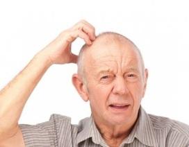 Điểm mặt 5 di chứng nguy hiểm căn bệnh đột quỵ não gặp nhiều trong mùa đông