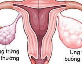 Phụ Lạc Cao EX giúp chị em không còn lo nguy cơ lạc nội mạc tử cung