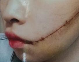 Trên đường đi làm, nữ công nhân bị rạch mặt khâu 25 mũi