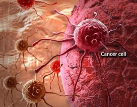 Giảm cân- dấu hiệu quan trọng cảnh báo ung thư