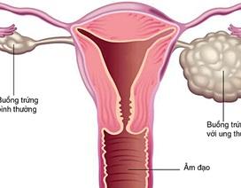 Nhiều trẻ mới hơn 10 tuổi đã bị ung thư buồng trứng