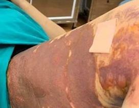 Thêm nạn nhân của Thẩm mỹ viện Việt Hàn bỏng nặng sau hút mỡ