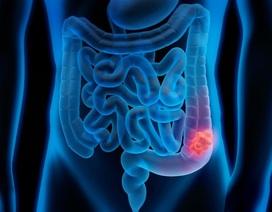 Ung thư đại trực tràng di căn gan có phẫu thuật được?