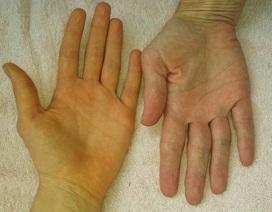 6 dấu hiệu tiền ung thư gan bạn nên để ý, đừng để cái chết đến gần