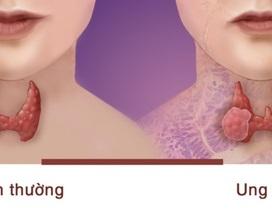 Loại bệnh ung thư phụ nữ dễ mắc hơn nam giới