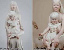 Sửng sốt trước diện mạo khác biệt của hai chị em người Kazakhstan