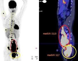 Nam bệnh nhân 35 tuổi ngỡ ngàng phát hiện tế bào ung thư lan khắp người